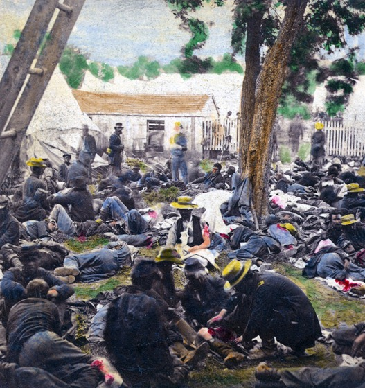 Wounded at Savage's Station – Hand-colored photo.